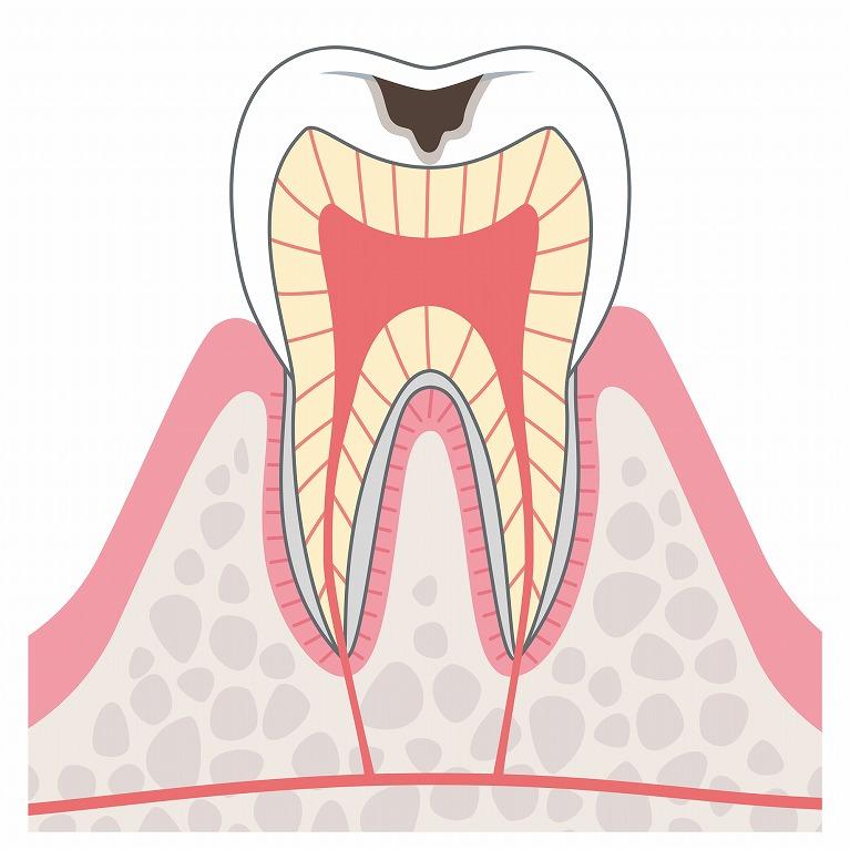 象牙質の虫歯