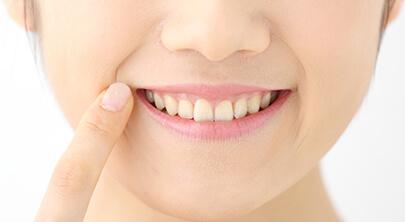 セレックで白い歯のセラミック